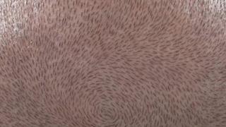 3D scalp micropigmentation