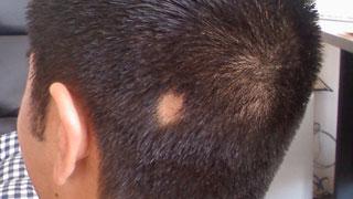 Symptoms of alopecia areata