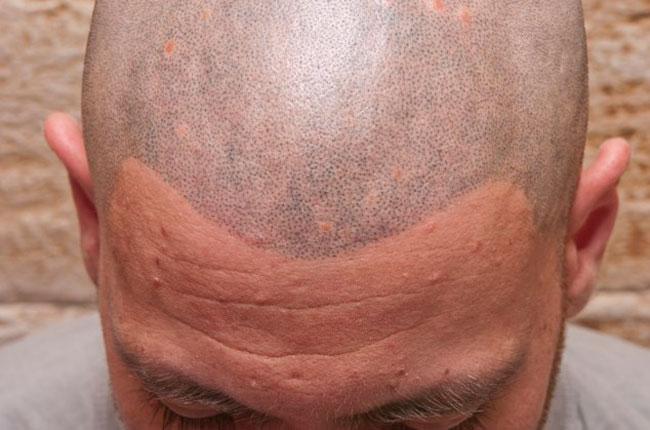 Poor hair tattoo result