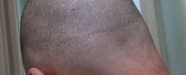 Linear FUT scar