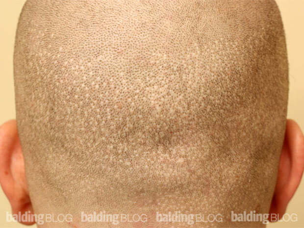 FUE scars