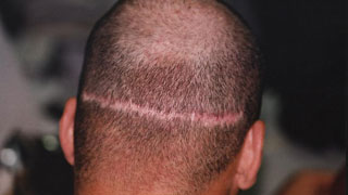 A wide hair transplant scar before SMP