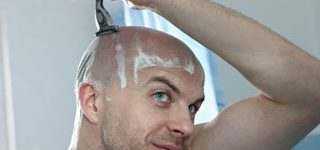 Scalp micropigmentation aftercare