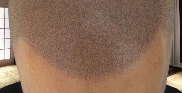 Broken hairline