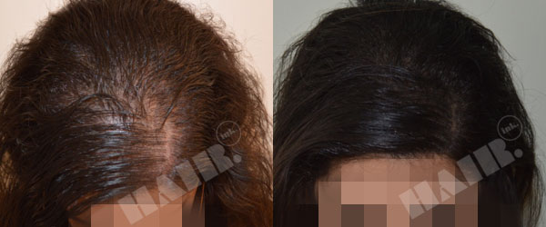 HAIR Ink before and after