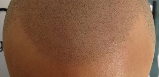 Jagged hairline by Shadow Clinic