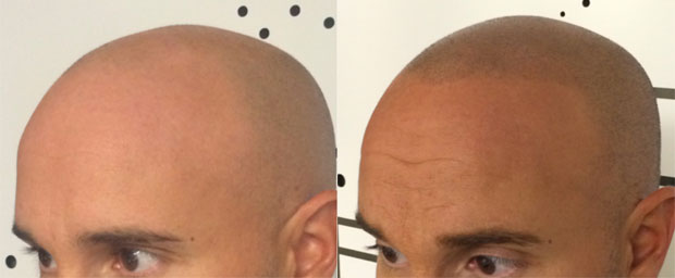 Another before and after photo showing results by Scalp Aesthetics