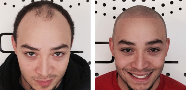 Before and after SMP by Scalp Aesthetics