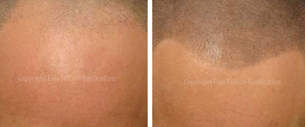 Another ScalpMP before and after photo