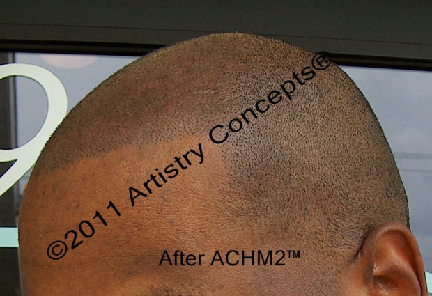 SMP on a black client of AC
