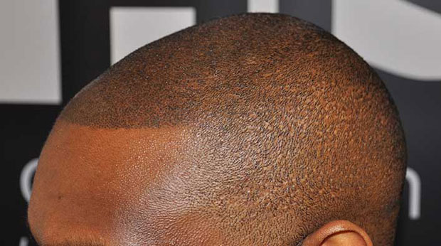 SMP on a black client of HIS