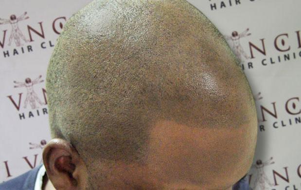 A black client of Vinci Hair Clinic