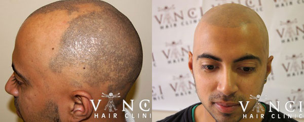 Vinci Hair Clinic before and after SMP