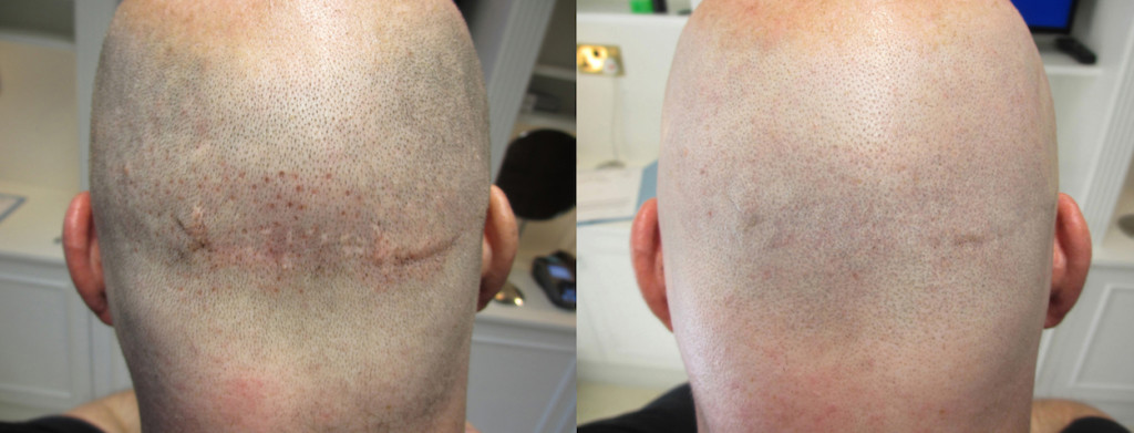 hair loss tattoo cost all about tattoo